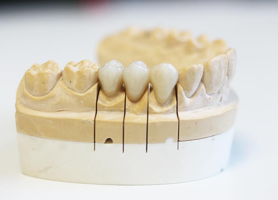 Preiswerter Zahnersatz Keramik Krone von der Seite