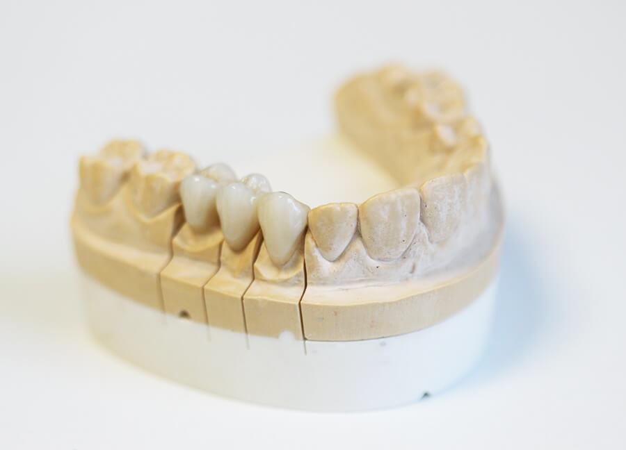 Preiswerter Zahnersatz Keramik Krone seitlich
