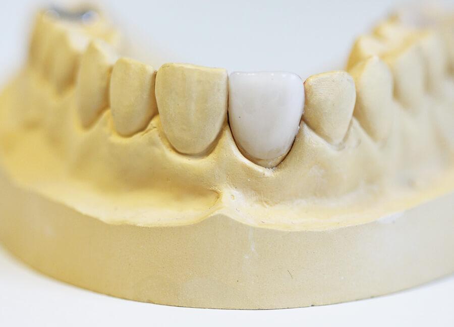 Preiswerter Zahnersatz Keramik Krone von Vorne