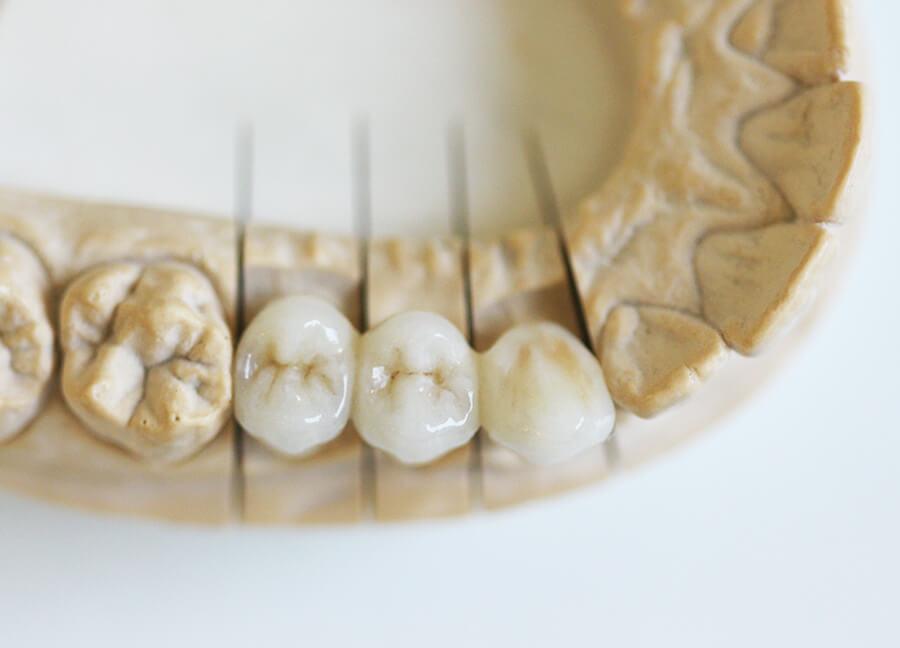 Preiswerter Zahnersatz Keramik Krone von oben