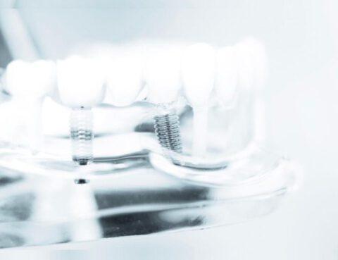 Feste Zähne auf Zahnimplantaten und das innerhalb von 24 Stunden!